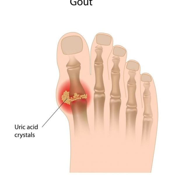 Gout Arthritis Foot Ankle Experts