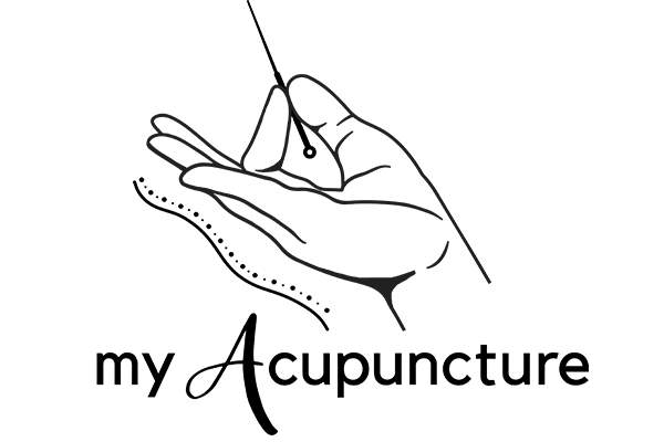 Myacupuncture Are Experts In